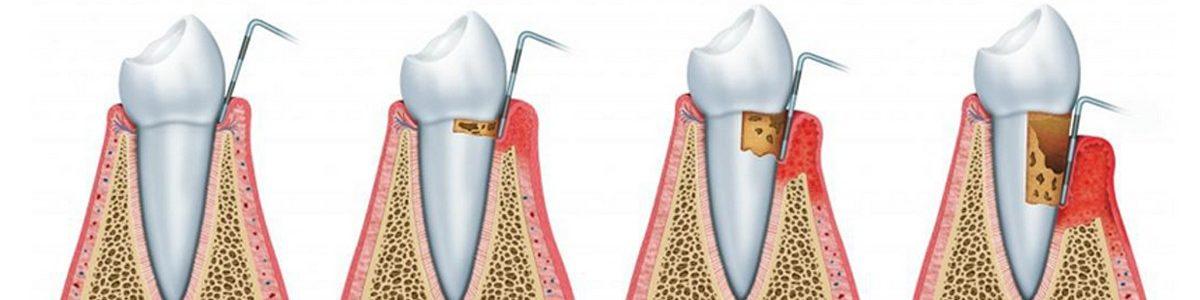 Parodontológia-hosszúkás-főkép