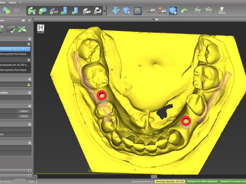 Fontos idegképlet vizualizációja és tervezett implantátumpozició