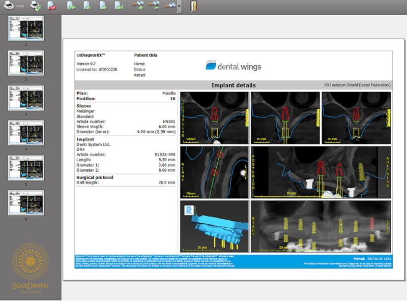 Kész terv részletei a programban - navigációs implantátum beültetése